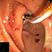 Sequenz 4 – Endoskopische Kontrolle der Stentlage mittels Gastroskop